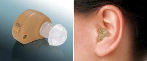 Внутриушной слуховой аппарат