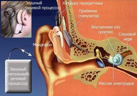 Кохлеарный имплант и его расположение